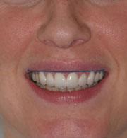 Gülüş estetiği, diş estetiği, gülüş tasarımı, smile design, gülme estetiği