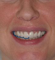 estetik diş doktoru, gülme estetiği