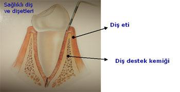 Diş Eti Çekilmesi, Periodontoloji, dişetleri rahatsızlığı, dişeti ameliyatı