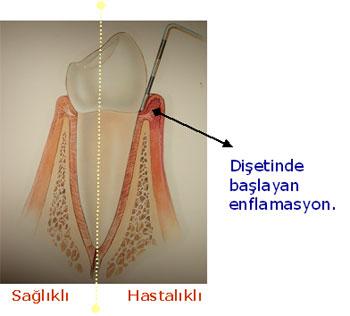 Diş Eti iltihabı, periodontolog, dişeti operasyonu